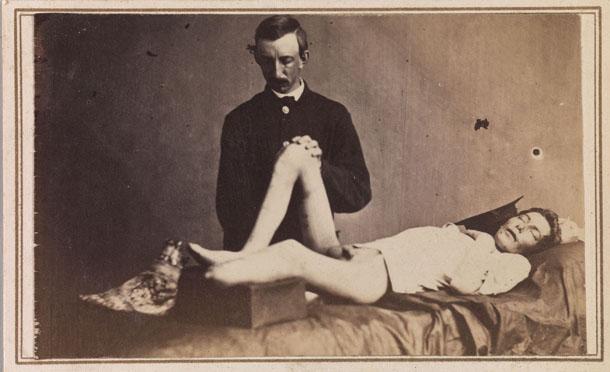 Rīds Brokvejs Bontekū (Reed Brockway Bontecou, 1824-1907) Savienoto Valstu ierindnieks Džons Pārmenters no Pensilvānijas 67. Brīvprātīgo pulka ar amputētu kāju uz operāciju galda. 1865. gada 21. jūnijs